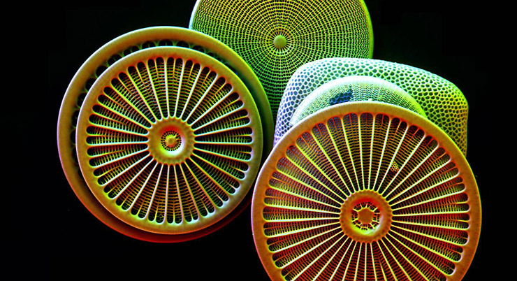 Diatoms imaged by microscope in false color.